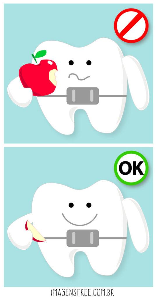 Aparelho ortodôntico e os alimentos duros. A ilustração mostra um dente com aparelho segurando uma maça inteira e um pedacinho da fruta